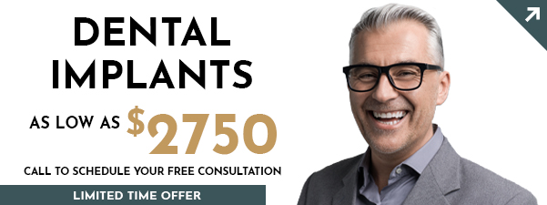 Dental implant tooth replacement special coupon