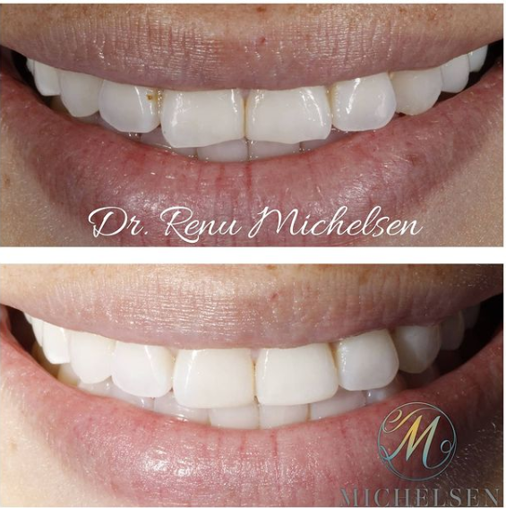 teeth bonding before/after