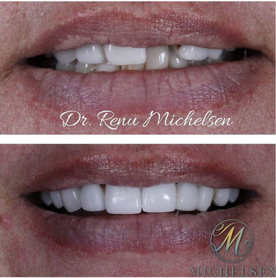 Cerec crowns before/after